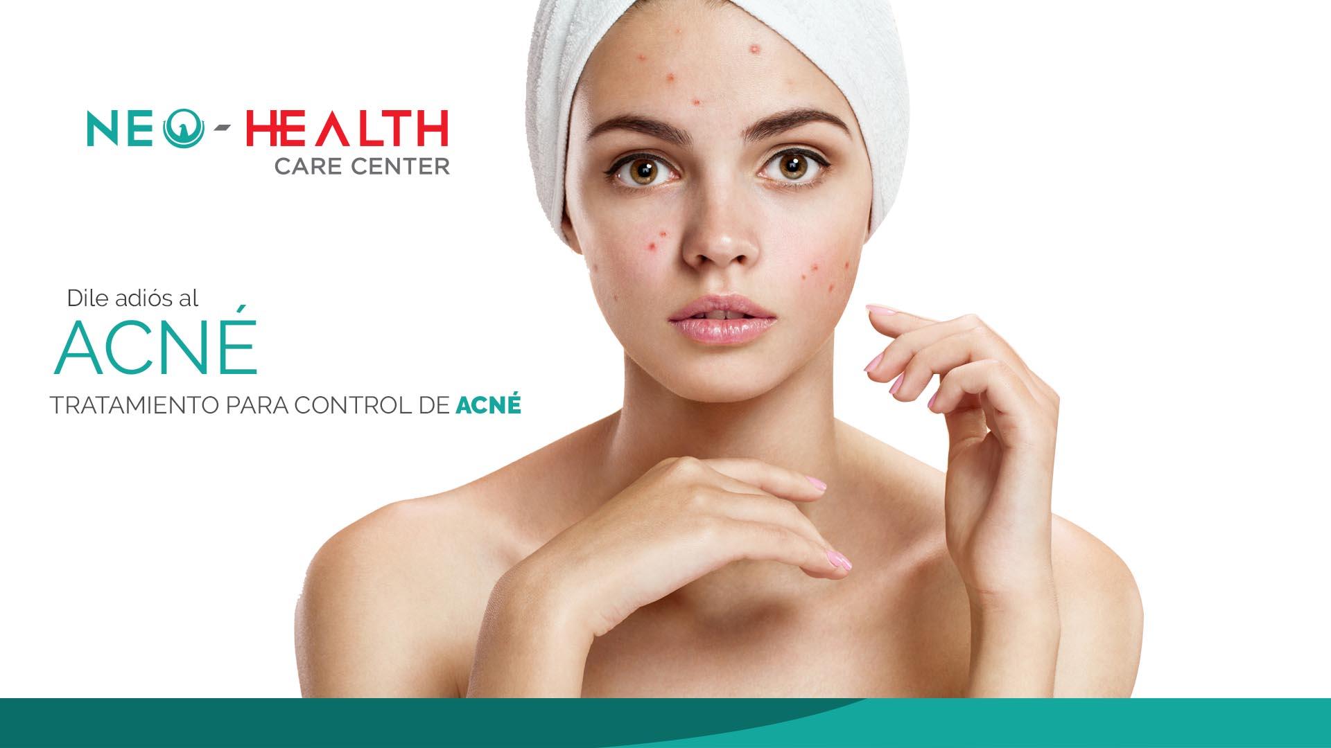 Tratamientos para el control de acné en queretaro