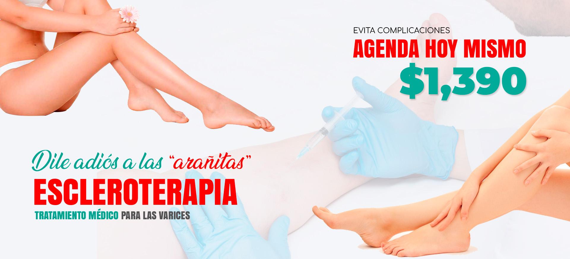 Clinicas de varices en Querétaro